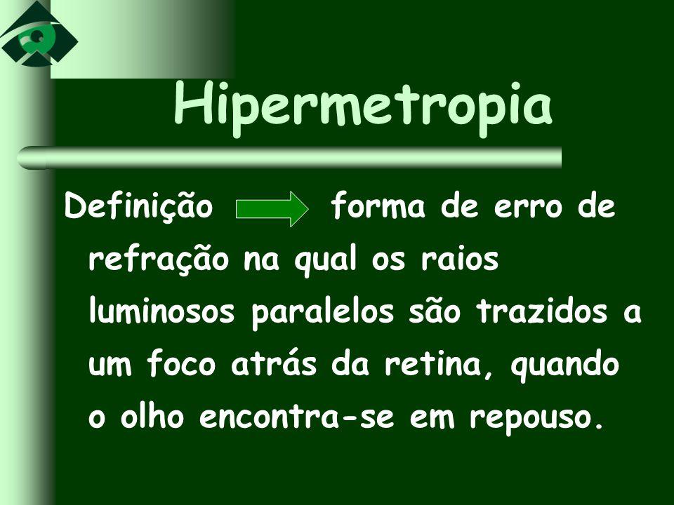 Hipermetropia Definição forma de erro de refração na qual os raios luminosos paralelos são trazidos a um foco atrás da retina, quando o olho encontra-