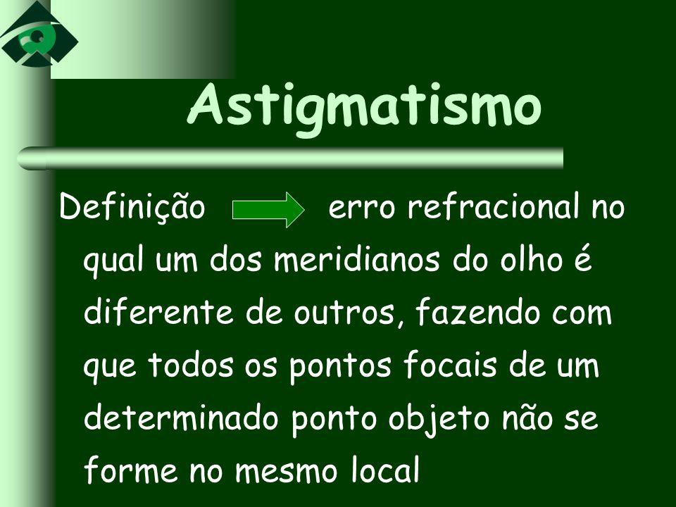 Astigmatismo Definição erro refracional no qual um dos meridianos do olho é diferente de outros, fazendo com que todos os pontos focais de um determin