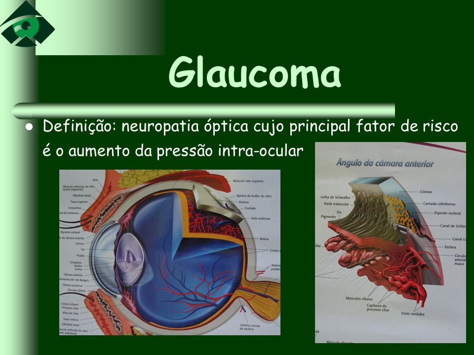 Glaucoma Definição: neuropatia óptica cujo principal fator de risco é o aumento da pressão intra-ocular
