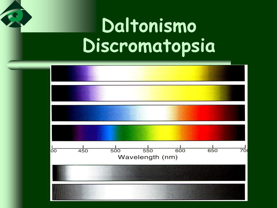 Daltonismo Discromatopsia