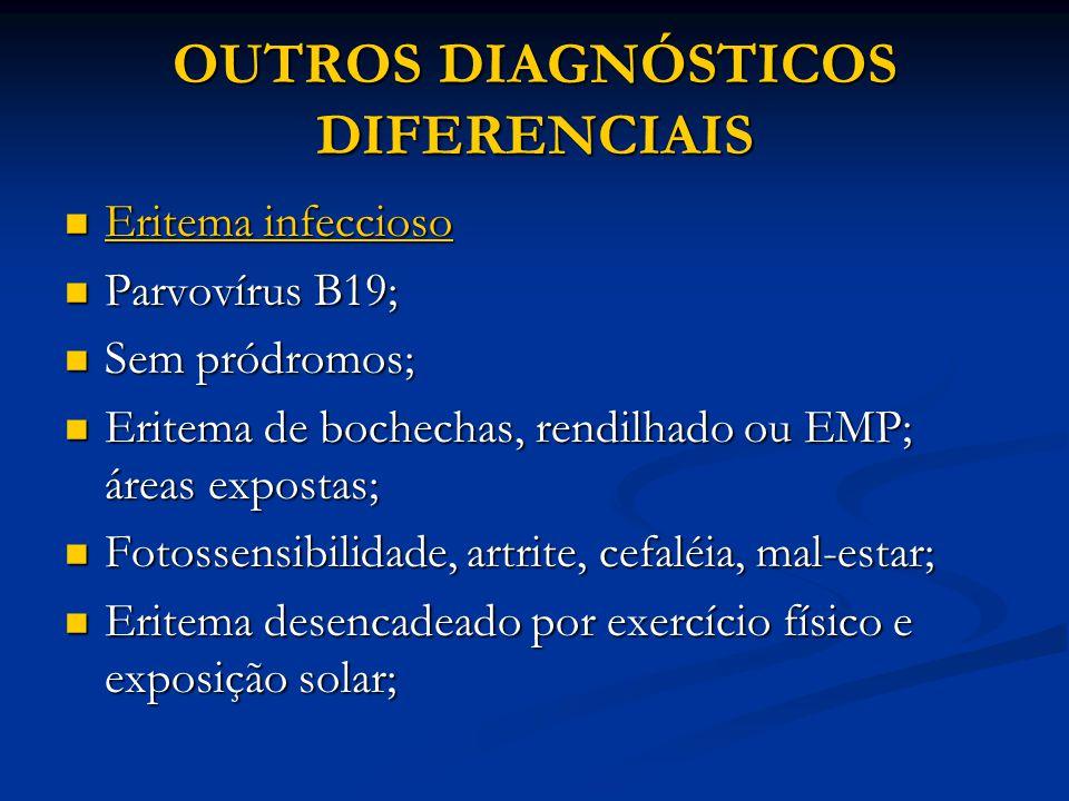 OUTROS DIAGNÓSTICOS DIFERENCIAIS Eritema infeccioso Eritema infeccioso Parvovírus B19; Parvovírus B19; Sem pródromos; Sem pródromos; Eritema de bochechas, rendilhado ou EMP; áreas expostas; Eritema de bochechas, rendilhado ou EMP; áreas expostas; Fotossensibilidade, artrite, cefaléia, mal-estar; Fotossensibilidade, artrite, cefaléia, mal-estar; Eritema desencadeado por exercício físico e exposição solar; Eritema desencadeado por exercício físico e exposição solar;