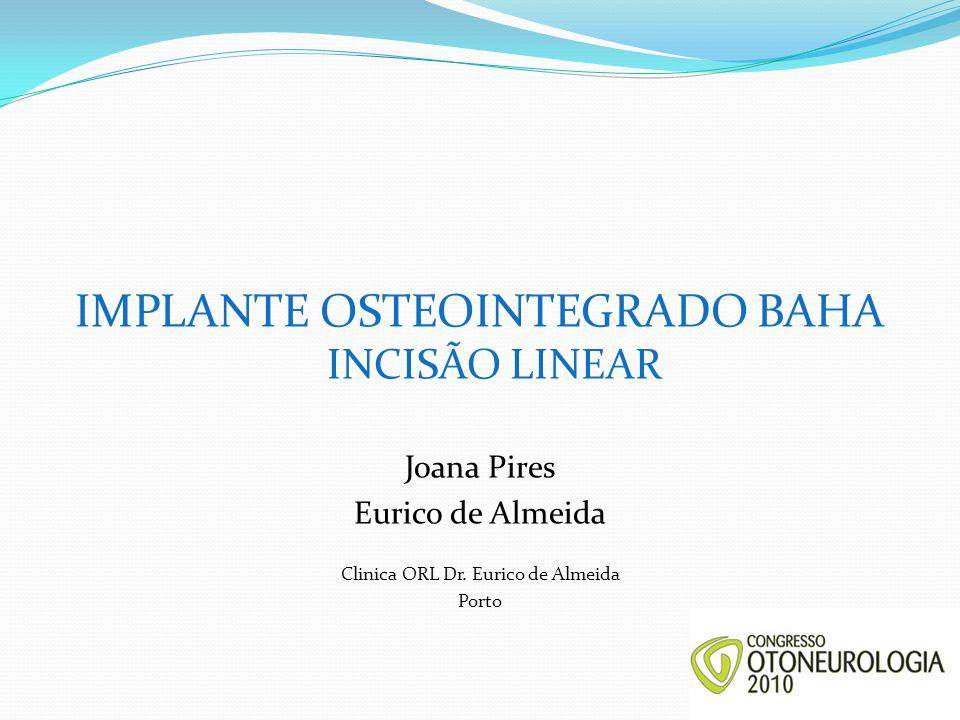 IMPLANTE OSTEOINTEGRADO BAHA INCISÃO LINEAR Joana Pires Eurico de Almeida Clinica ORL Dr. Eurico de Almeida Porto