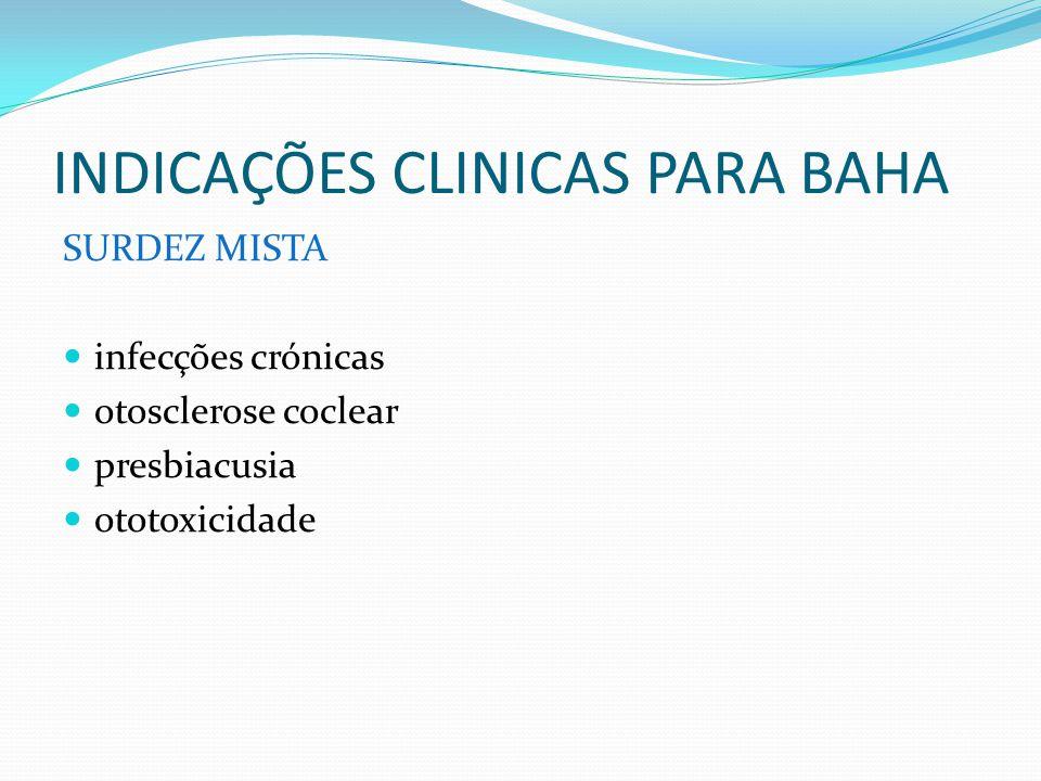 INDICAÇÕES CLINICAS PARA BAHA SURDEZ MISTA infecções crónicas otosclerose coclear presbiacusia ototoxicidade