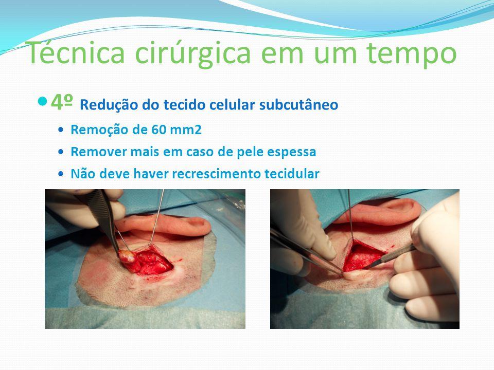 Técnica cirúrgica em um tempo 4º Redução do tecido celular subcutâneo Remoção de 60 mm2 Remover mais em caso de pele espessa Não deve haver recrescime