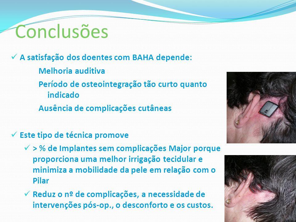 Conclusões A satisfação dos doentes com BAHA depende: Melhoria auditiva Período de osteointegração tão curto quanto indicado Ausência de complicações