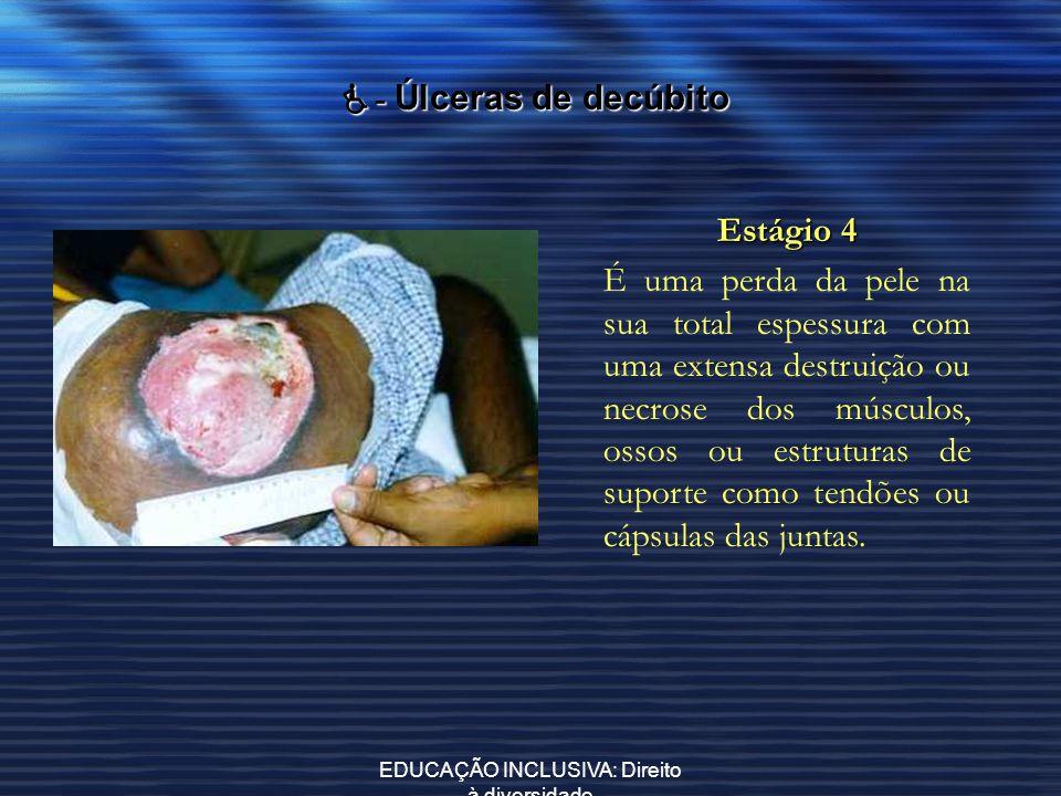 EDUCAÇÃO INCLUSIVA: Direito à diversidade - Úlceras de decúbito - Úlceras de decúbito Estágio 4 É uma perda da pele na sua total espessura com uma ext