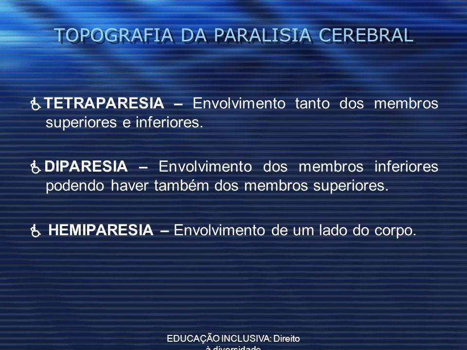 EDUCAÇÃO INCLUSIVA: Direito à diversidade TOPOGRAFIA DA PARALISIA CEREBRAL TETRAPARESIA – Envolvimento tanto dos membros superiores e inferiores. DIPA
