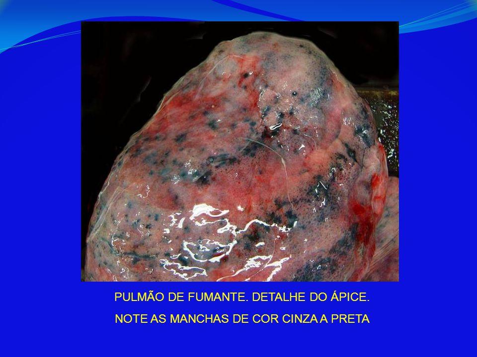 PULMÃO DE FUMANTE. DETALHE DO ÁPICE. NOTE AS MANCHAS DE COR CINZA A PRETA