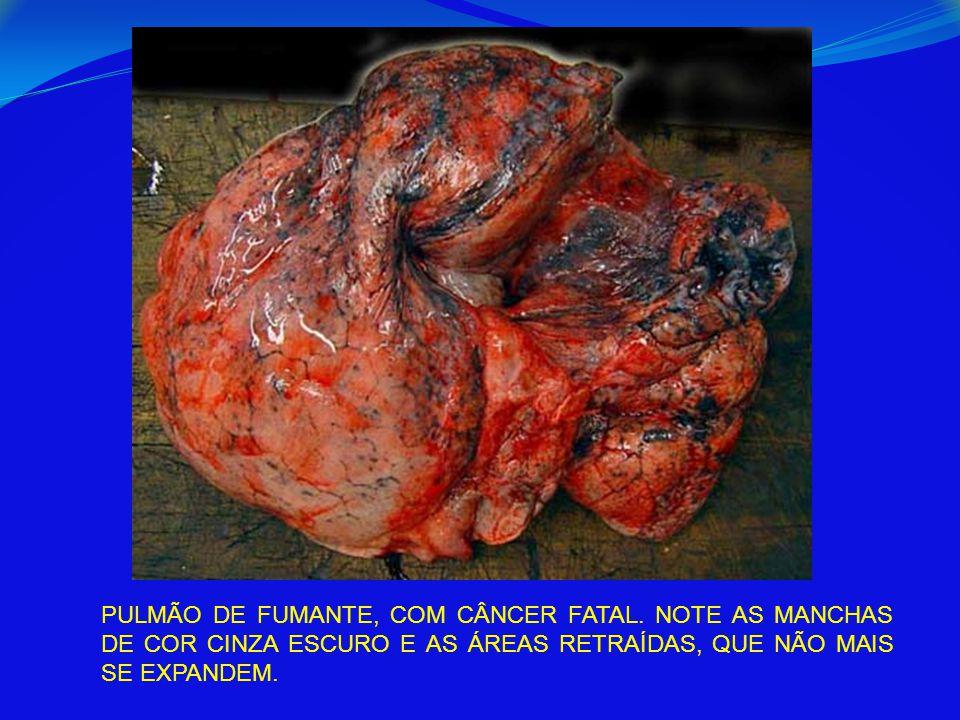 PULMÃO DE FUMANTE, COM CÂNCER FATAL. NOTE AS MANCHAS DE COR CINZA ESCURO E AS ÁREAS RETRAÍDAS, QUE NÃO MAIS SE EXPANDEM.