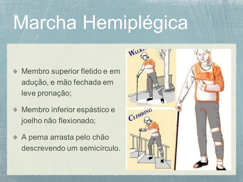 Marcha Hemiplégica Membro superior fletido e em adução, e mão fechada em leve pronação; Membro inferior espástico e joelho não flexionado; A perna arr