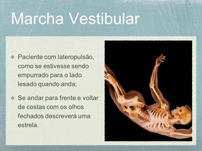 Marcha Vestibular Paciente com lateropulsão, como se estivesse sendo empurrado para o lado lesado quando anda; Se andar para frente e voltar de costas