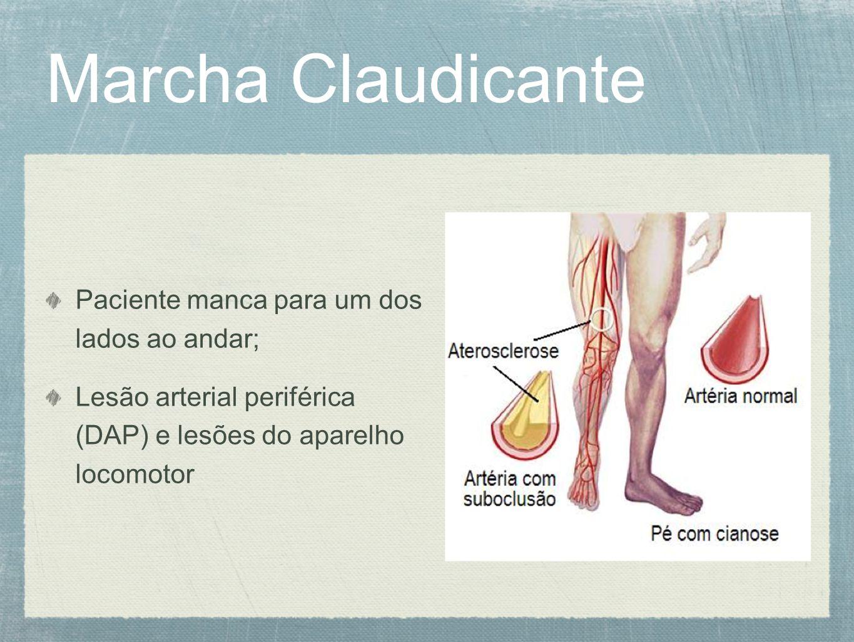 Marcha Claudicante Paciente manca para um dos lados ao andar; Lesão arterial periférica (DAP) e lesões do aparelho locomotor