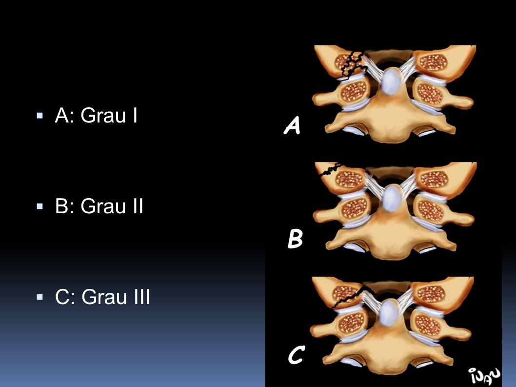 A: Grau I B: Grau II C: Grau III