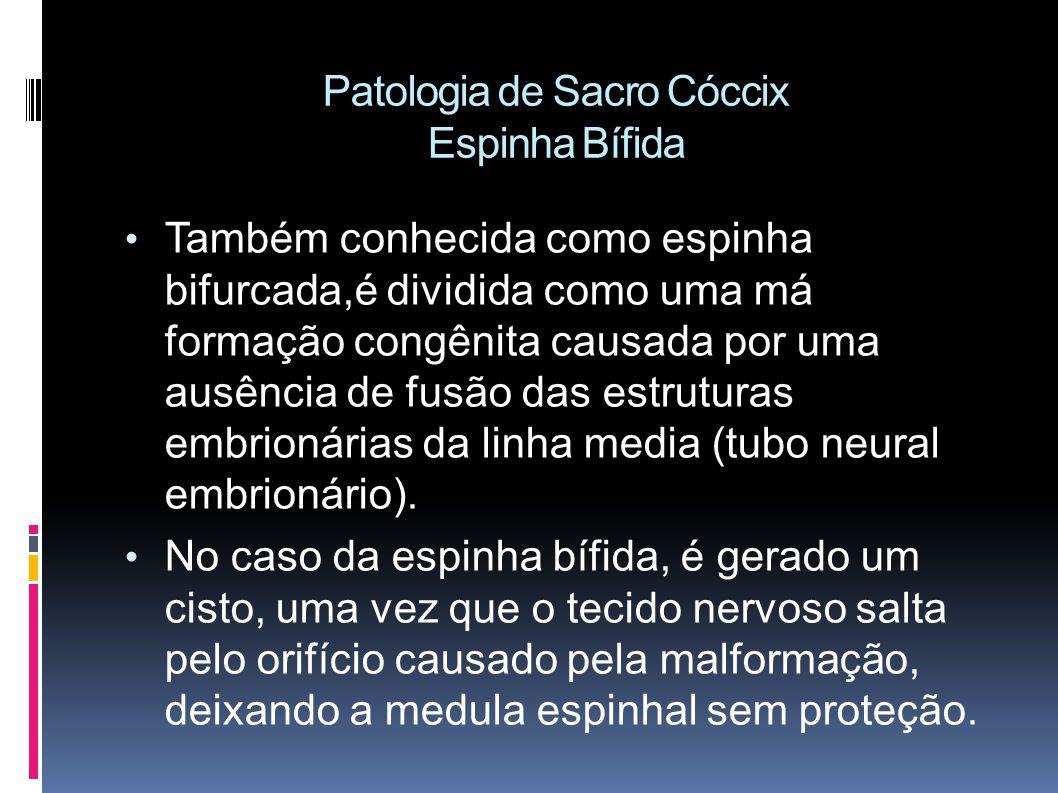 Patologia de Sacro Cóccix Espinha Bífida Também conhecida como espinha bifurcada,é dividida como uma má formação congênita causada por uma ausência de fusão das estruturas embrionárias da linha media (tubo neural embrionário).