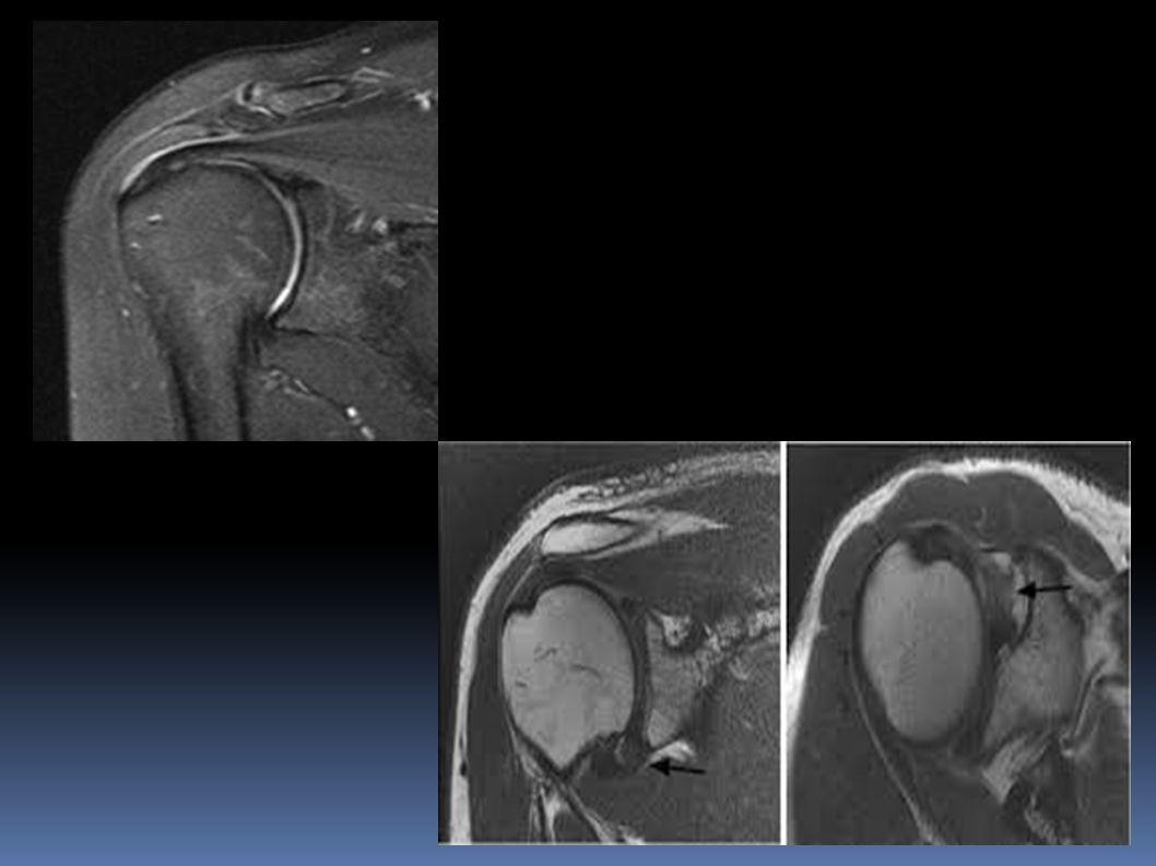 Avaliação radiográfica: A radiografia de saída(outlet) possibilita o médico observar o deslocamento vertical da hemipelve, em direção cefálica, e avaliar indícios sutis de lesão do anel pélvico; Eventualmente pode-se lançar mão da TC para uma melhor avaliação das fraturas.