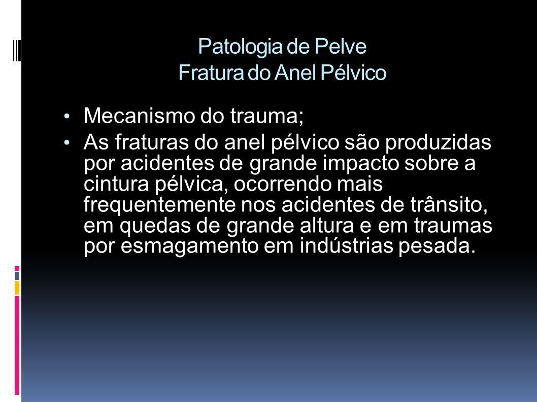 Patologia de Pelve Fratura do Anel Pélvico Mecanismo do trauma; As fraturas do anel pélvico são produzidas por acidentes de grande impacto sobre a cintura pélvica, ocorrendo mais frequentemente nos acidentes de trânsito, em quedas de grande altura e em traumas por esmagamento em indústrias pesada.