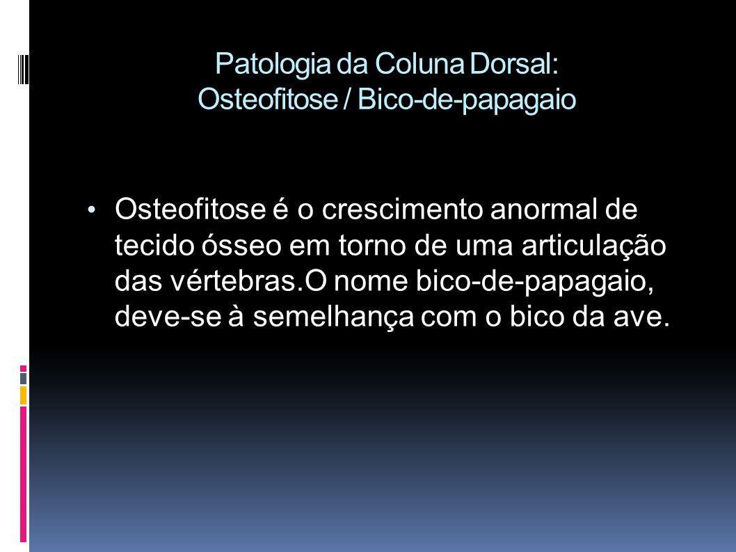 Patologia da Coluna Dorsal: Osteofitose / Bico-de-papagaio Osteofitose é o crescimento anormal de tecido ósseo em torno de uma articulação das vértebras.O nome bico-de-papagaio, deve-se à semelhança com o bico da ave.