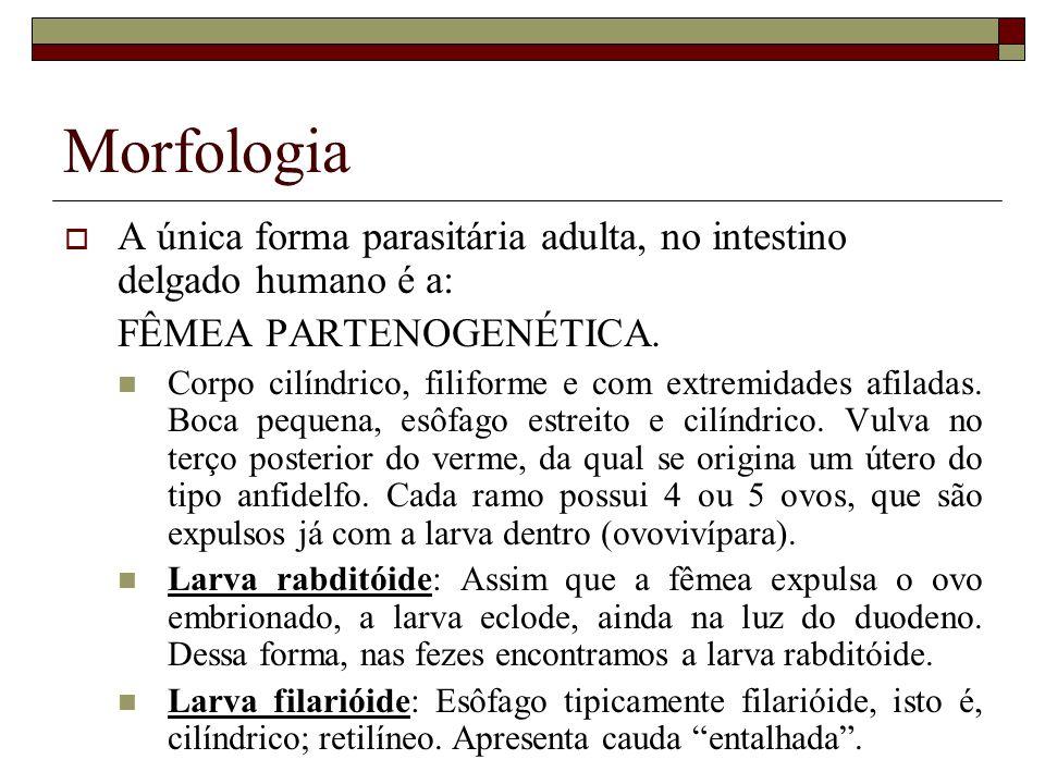 Morfologia LARVA RABDITÓIDE LARVA FILARIÓIDE