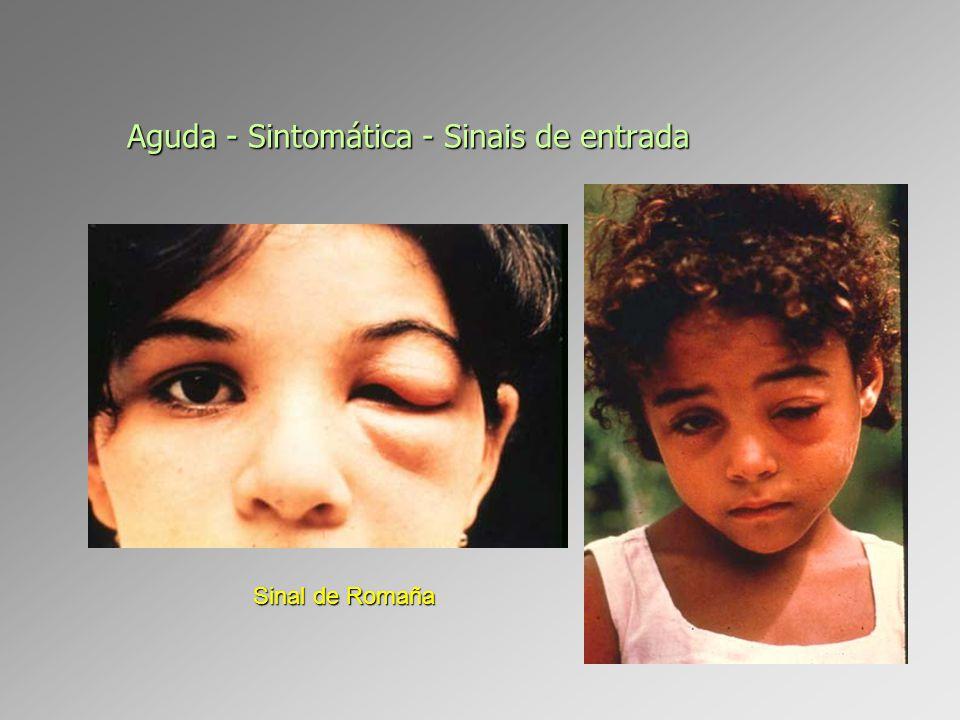 Aguda - Sintomática - Sinais de entrada Sinal de Romaña