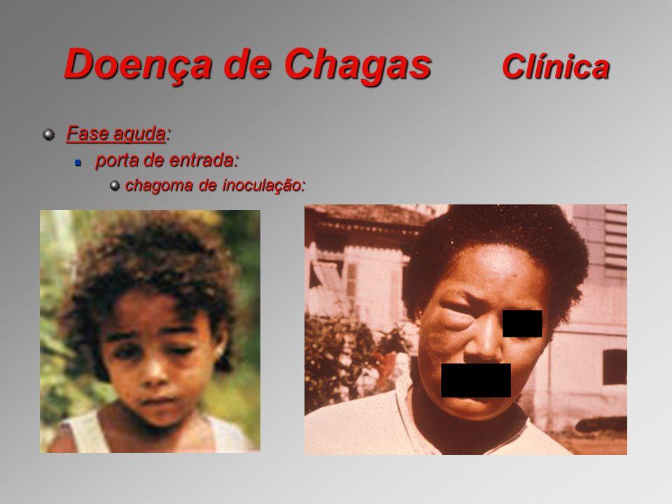 Doença de Chagas Clínica Fase aguda: porta de entrada: porta de entrada: chagoma de inoculação: