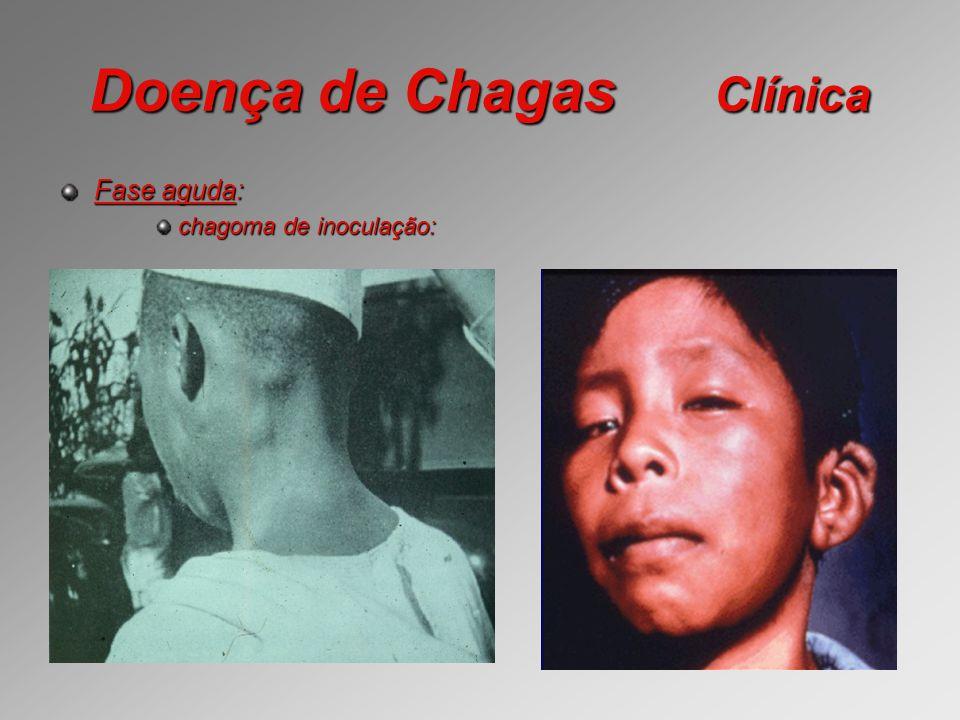 Doença de Chagas Clínica Fase aguda: chagoma de inoculação: