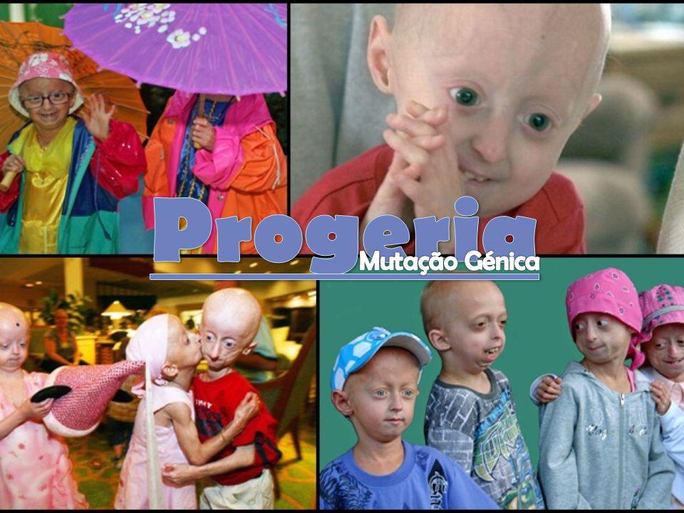 Progeria provém do Grego e significa envelhecimento prematuro.