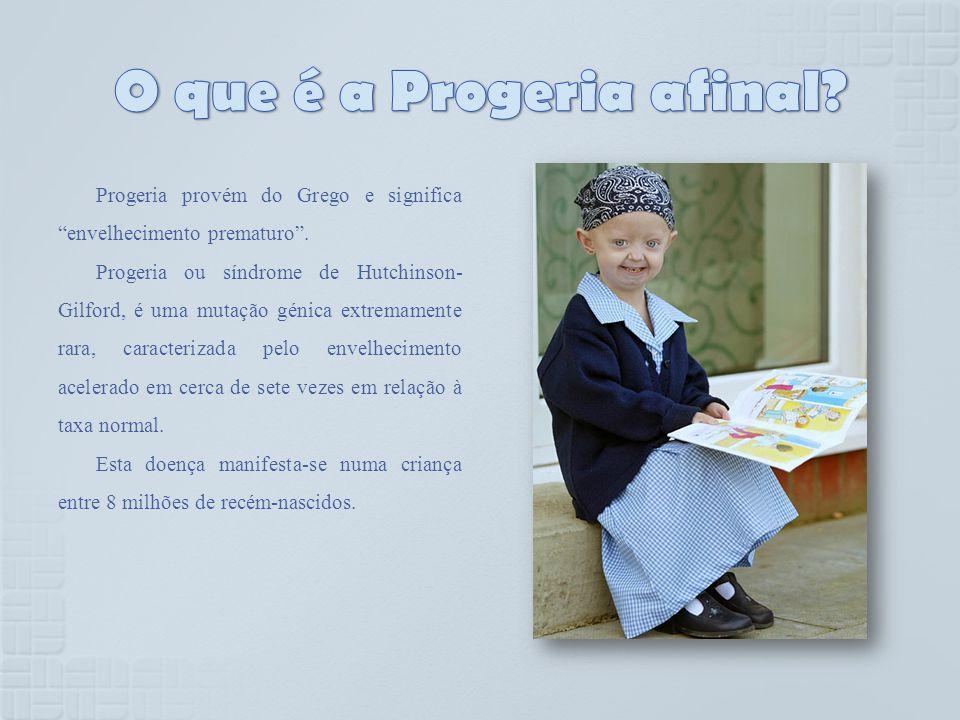 Progeria provém do Grego e significa envelhecimento prematuro. Progeria ou síndrome de Hutchinson- Gilford, é uma mutação génica extremamente rara, ca