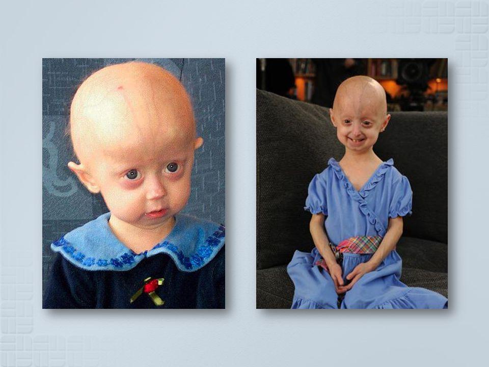 As crianças com Progeria nascem aparentemente saudáveis e só começam a evidenciar sintomas de envelhecimento prematuro entre os 18 e os 24 meses.