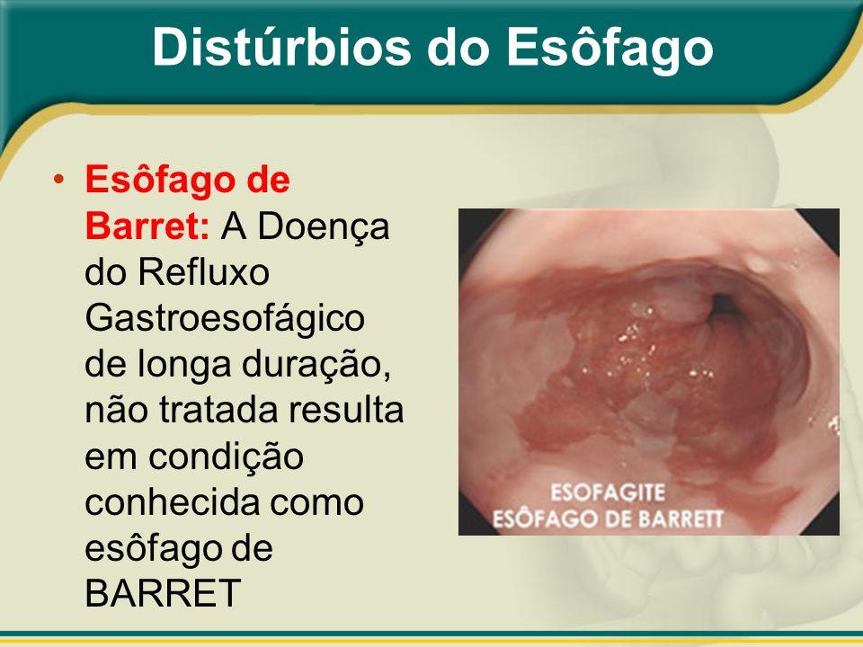 Esôfago de Barret: A Doença do Refluxo Gastroesofágico de longa duração, não tratada resulta em condição conhecida como esôfago de BARRET