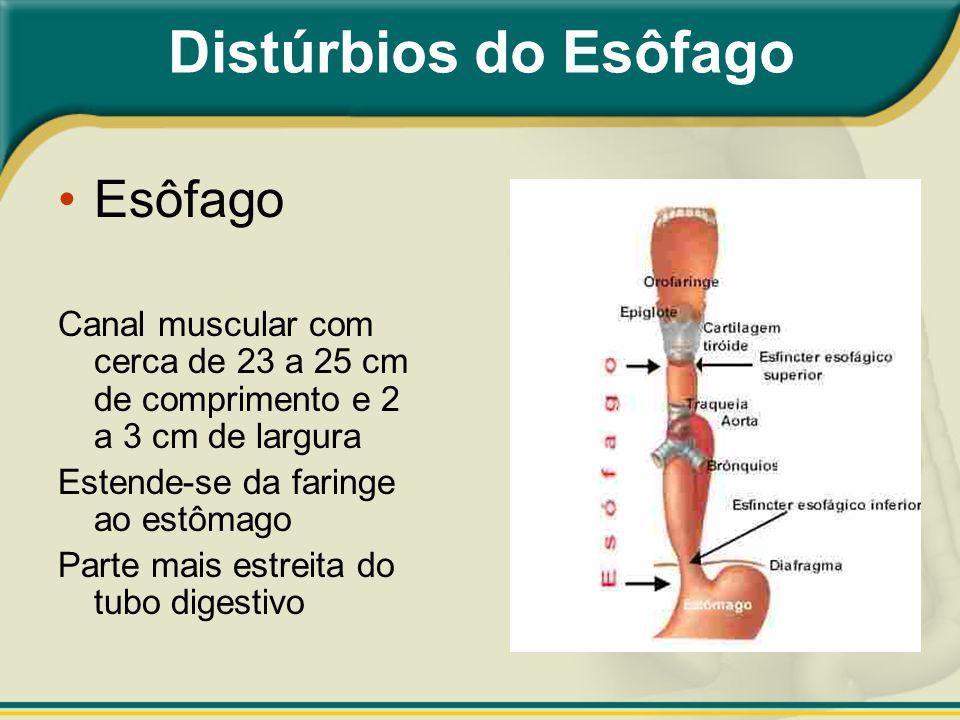 Distúrbios do Esôfago Esôfago Canal muscular com cerca de 23 a 25 cm de comprimento e 2 a 3 cm de largura Estende-se da faringe ao estômago Parte mais