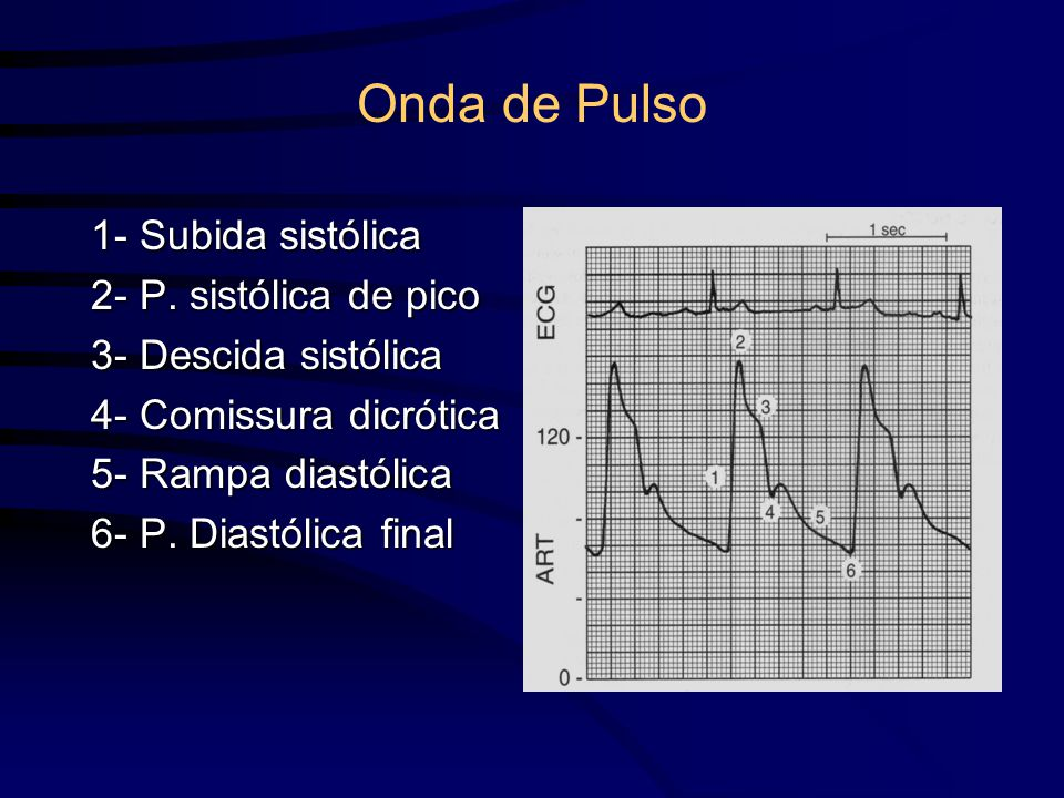 Onda de Pulso 1- Subida sistólica 2- P. sistólica de pico 3- Descida sistólica 4- Comissura dicrótica 5- Rampa diastólica 6- P. Diastólica final