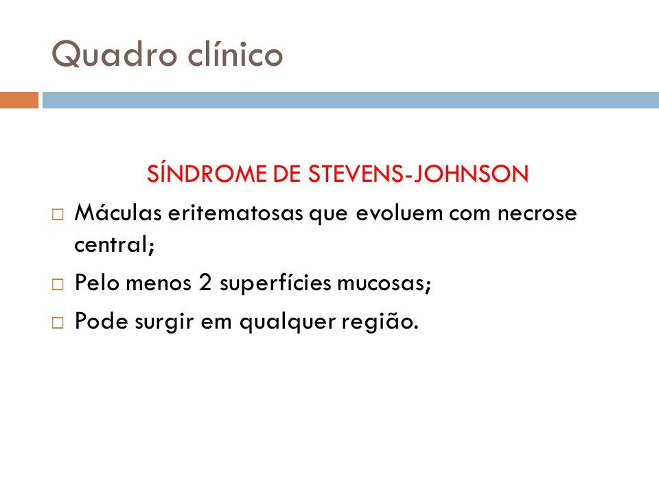 Quadro clínico SÍNDROME DE STEVENS-JOHNSON Máculas eritematosas que evoluem com necrose central; Pelo menos 2 superfícies mucosas; Pode surgir em qualquer região.