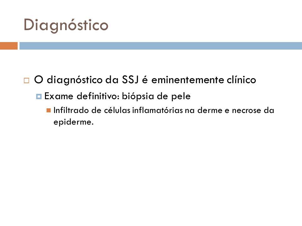 Diagnóstico O diagnóstico da SSJ é eminentemente clínico Exame definitivo: biópsia de pele Infiltrado de células inflamatórias na derme e necrose da epiderme.