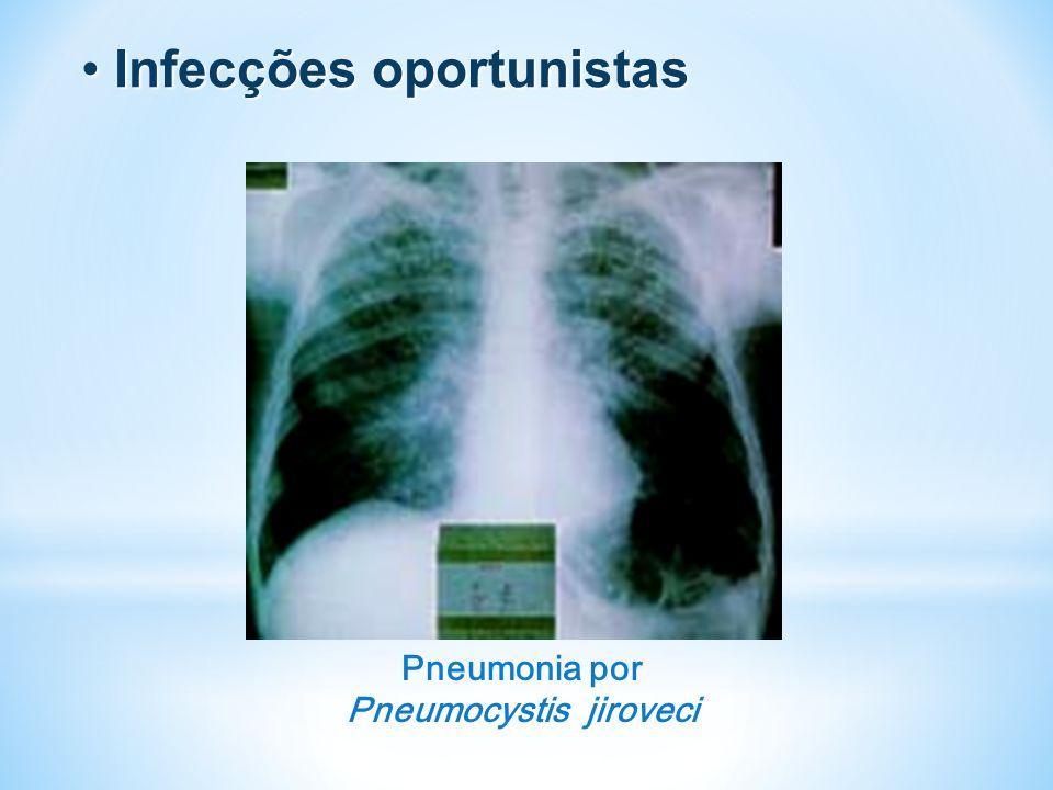 Infecções oportunistas Infecções oportunistas Pneumonia por Pneumocystis jiroveci