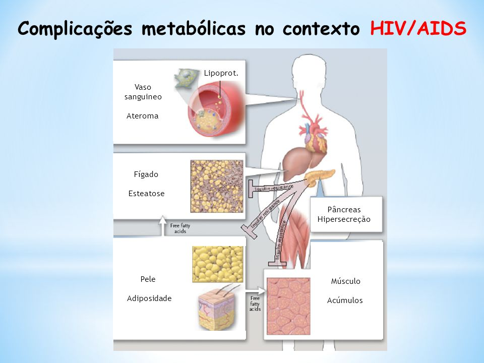 Complicações metabólicas no contexto HIV/AIDS Vaso sanguineo Ateroma Lipoprot. Fígado Esteatose Pele Adiposidade Músculo Acúmulos Pâncreas Hipersecreç