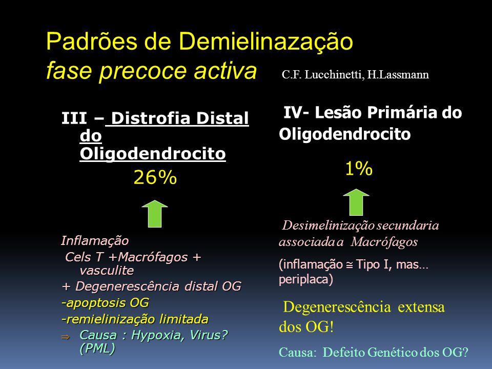 Padrões de Demielinazação fase precoce activa III – Distrofia Distal do Oligodendrocito 26% Inflamação Cels T +Macrófagos + vasculite Cels T +Macrófag