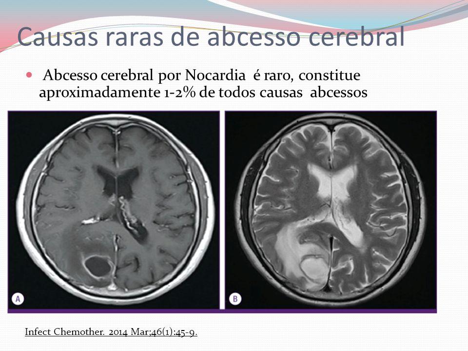 Causas raras de abcesso cerebral Abcesso cerebral por Nocardia é raro, constitue aproximadamente 1-2% de todos causas abcessos Infect Chemother. 2014