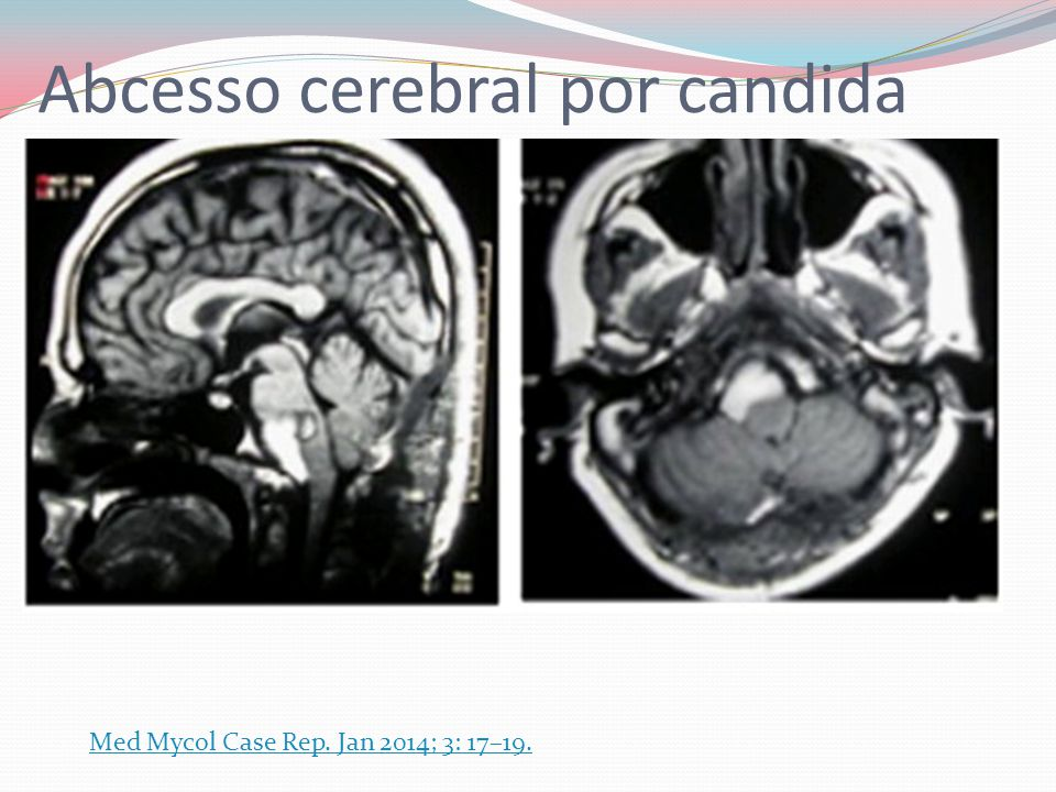 Abcesso cerebral por candida Med Mycol Case Rep. Jan 2014; 3: 17–19.