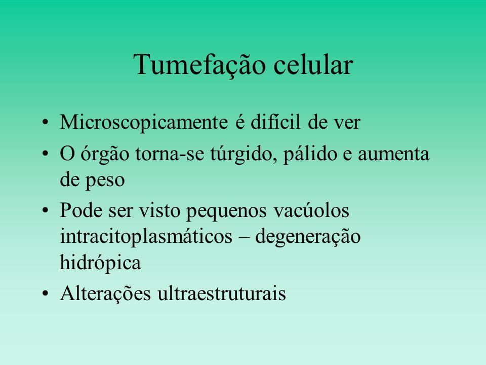 Tumefação celular Microscopicamente é difícil de ver O órgão torna-se túrgido, pálido e aumenta de peso Pode ser visto pequenos vacúolos intracitoplasmáticos – degeneração hidrópica Alterações ultraestruturais