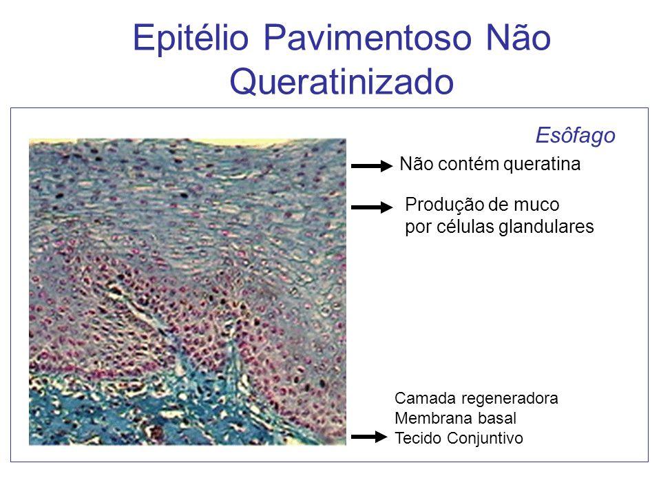 Epitélio Pavimentoso Não Queratinizado Não contém queratina Produção de muco por células glandulares Camada regeneradora Membrana basal Tecido Conjunt