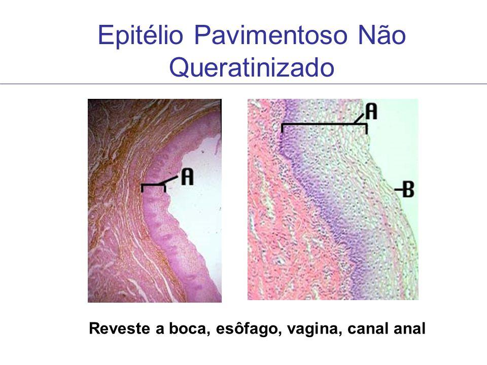 Epitélio Pavimentoso Não Queratinizado Reveste a boca, esôfago, vagina, canal anal