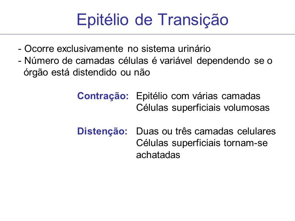 Epitélio de Transição - Ocorre exclusivamente no sistema urinário - Número de camadas células é variável dependendo se o órgão está distendido ou não