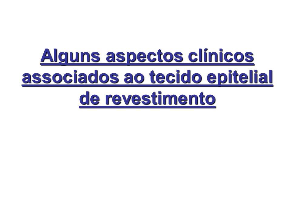 Alguns aspectos clínicos associados ao tecido epitelial de revestimento