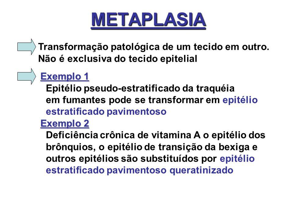 METAPLASIA Transformação patológica de um tecido em outro. Não é exclusiva do tecido epitelial Exemplo 1 Epitélio pseudo-estratificado da traquéia em