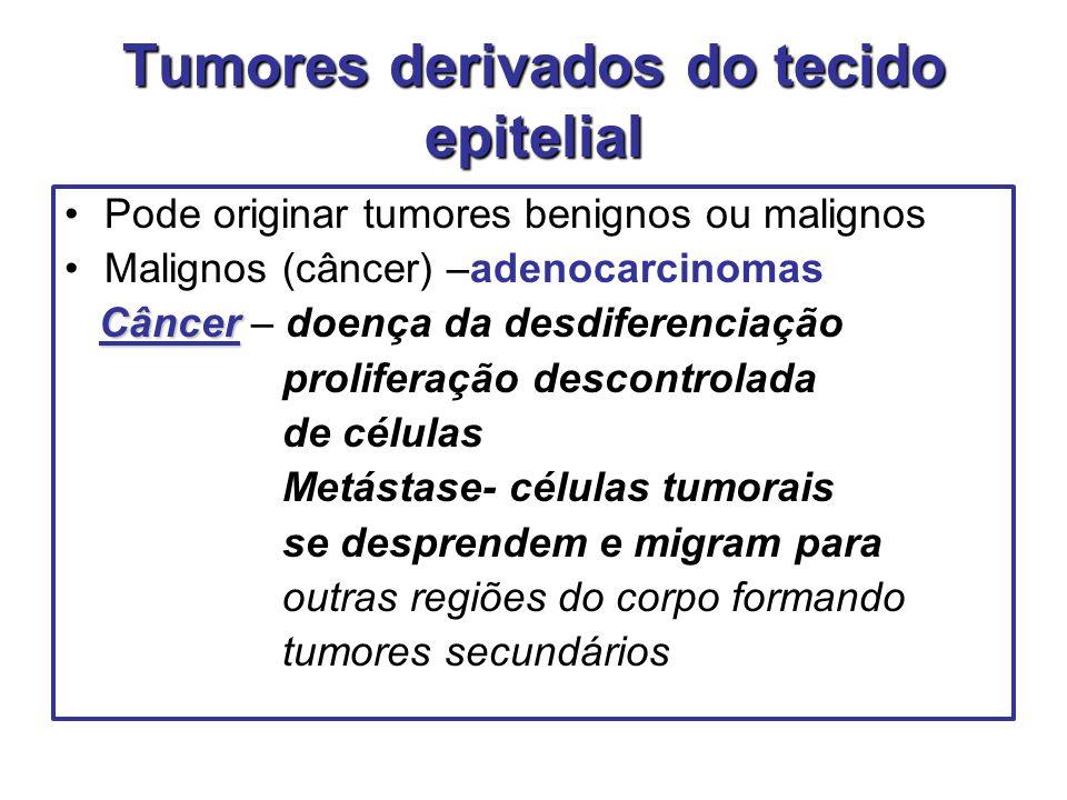 Tumores derivados do tecido epitelial Pode originar tumores benignos ou malignos Malignos (câncer) –adenocarcinomas Câncer Câncer – doença da desdifer