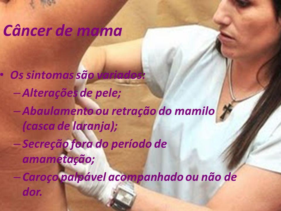 Câncer de mama Os sintomas são variados: – Alterações de pele; – Abaulamento ou retração do mamilo (casca de laranja); – Secreção fora do período de a