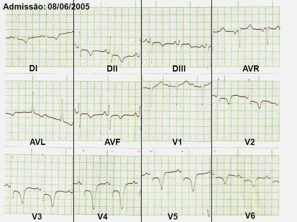 Sem novos episódios de angina Medicação: –AAS –Clopidogrel –Enoxparina (60 mg SC - BID) –Nitroglicerina EV Mononitrato VO –Propranolol (40 mg TID) –Captopril (50 mg TID) –Clonidina (0,2 mg BID) –Sinvastatina –Diazepam –Insulina Regular (EV-SC) CATHE: 09/06 No CTI: 08/06 a 11/06