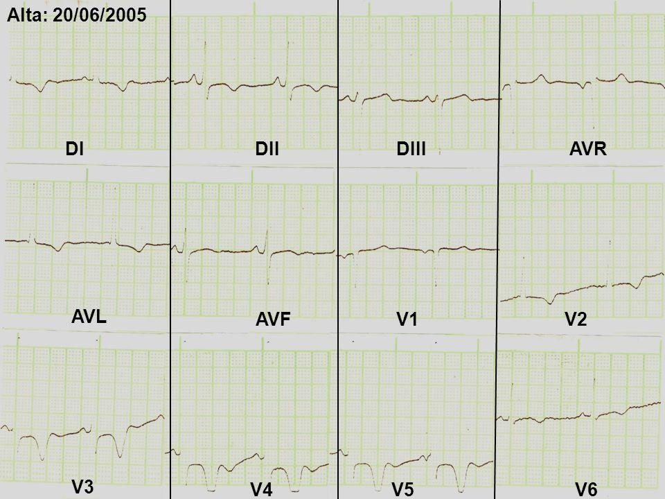 DIDIIDIII AVL AVR AVFV1V2 V3 V4V5V6 Alta: 20/06/2005