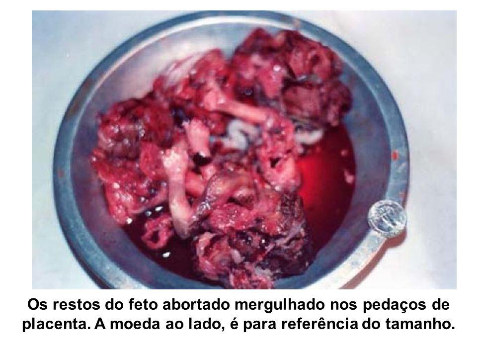 Os restos do feto abortado mergulhado nos pedaços de placenta.