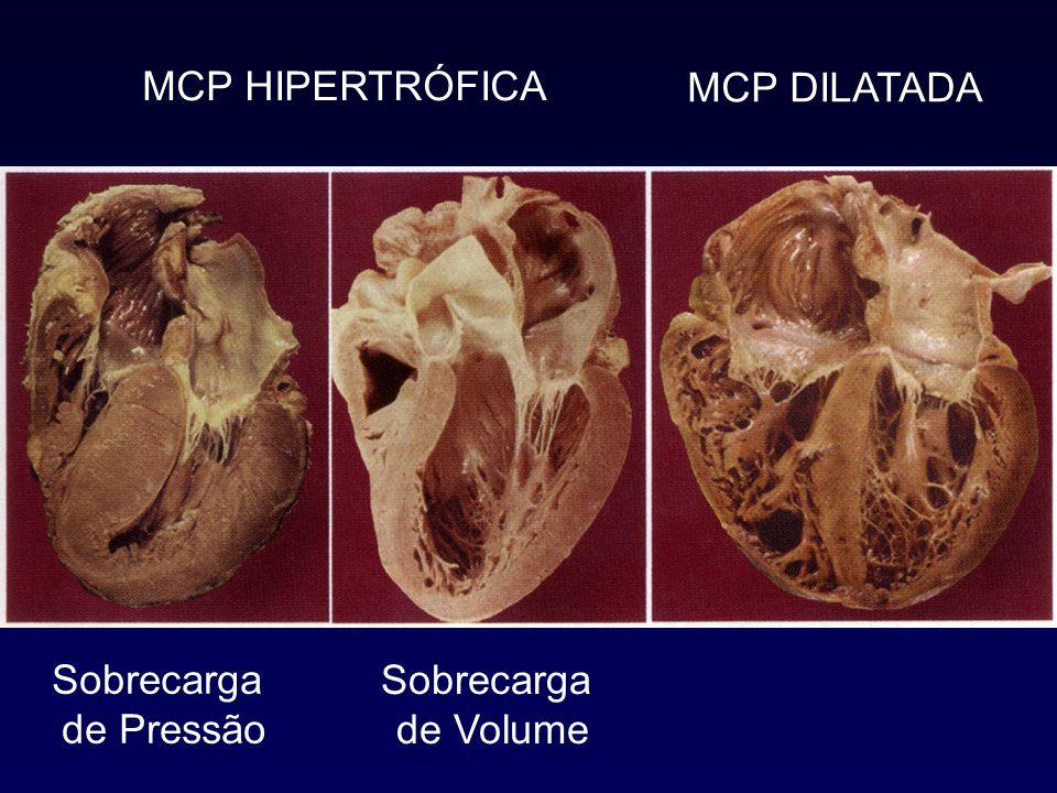 Sobrecarga de Pressão Sobrecarga de Volume MCP HIPERTRÓFICA MCP DILATADA